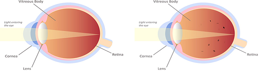 Facts about Vitreous Eye Floaters – Symptoms, Causes, Diagnosis & Treatment