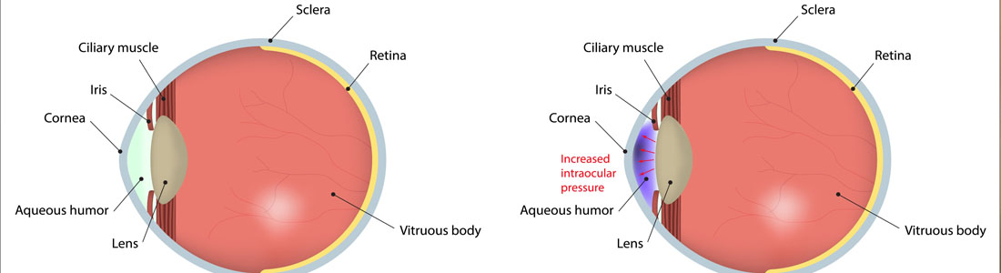 What Are The Signs And Symptoms Of Glaucoma?